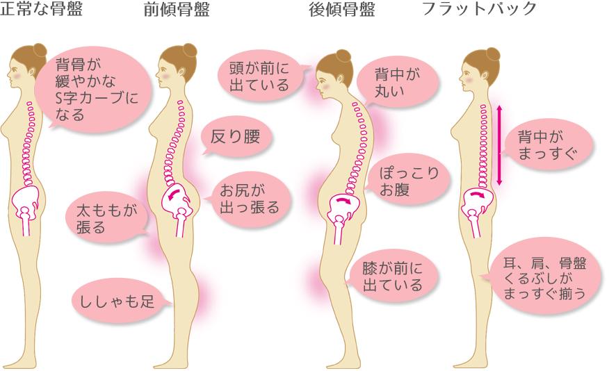 骨盤のバランス別スタイル特徴