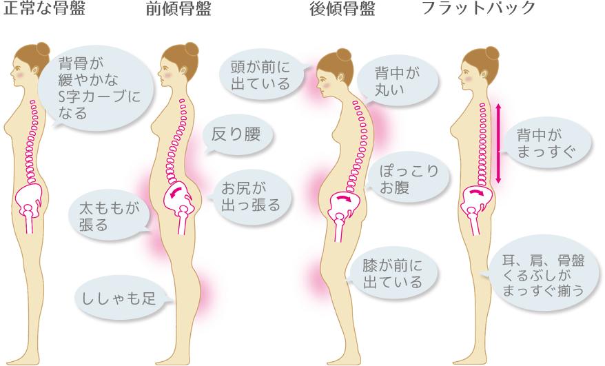 正常な骨盤以外に前傾骨盤、後傾骨盤、フラットバックのタイプがあります