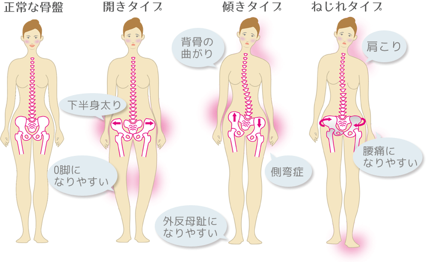 正常な骨盤以外に開き型、傾き型、ねじれ型のタイプがあります